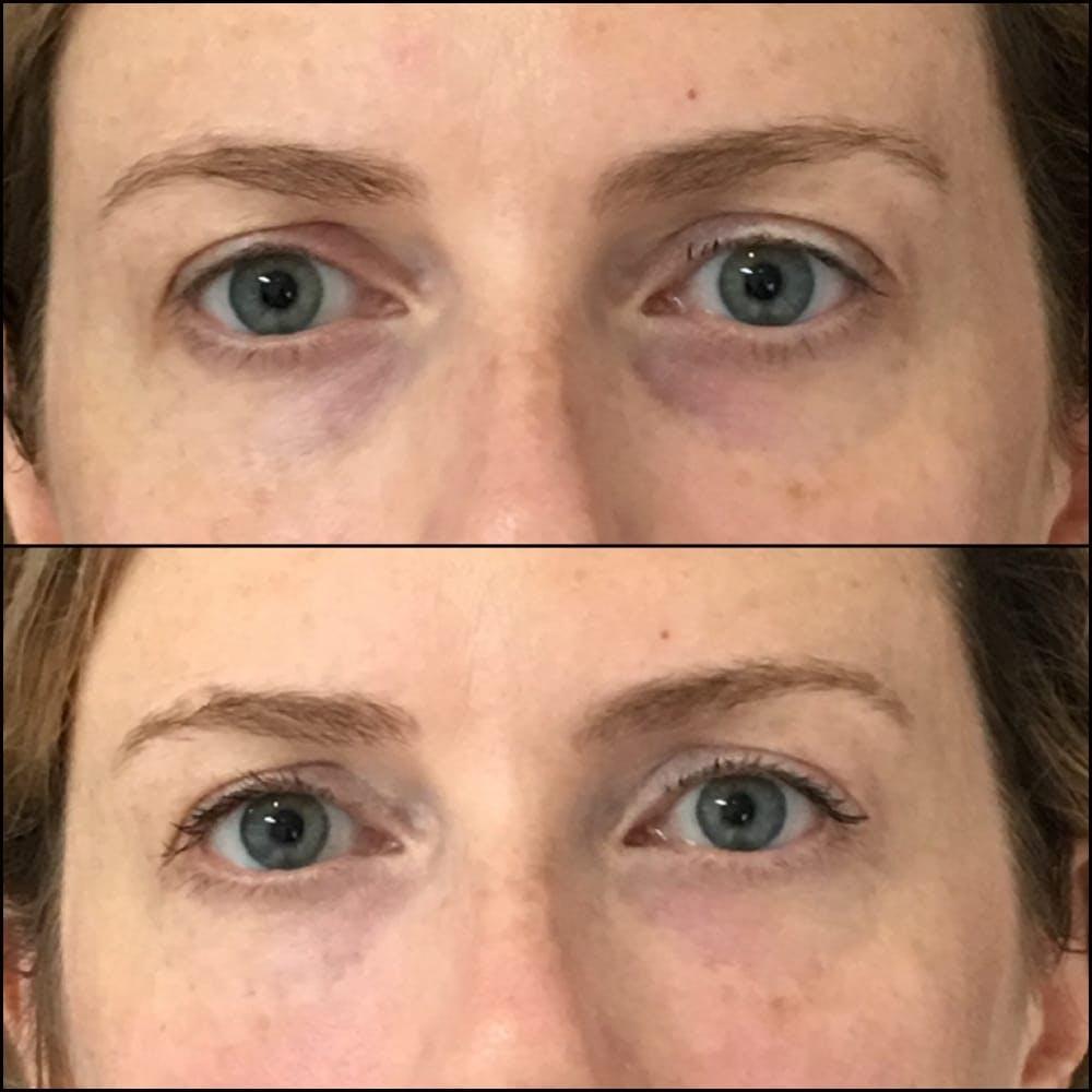 Eyelid Filler Gallery - Patient 54031172 - Image 1