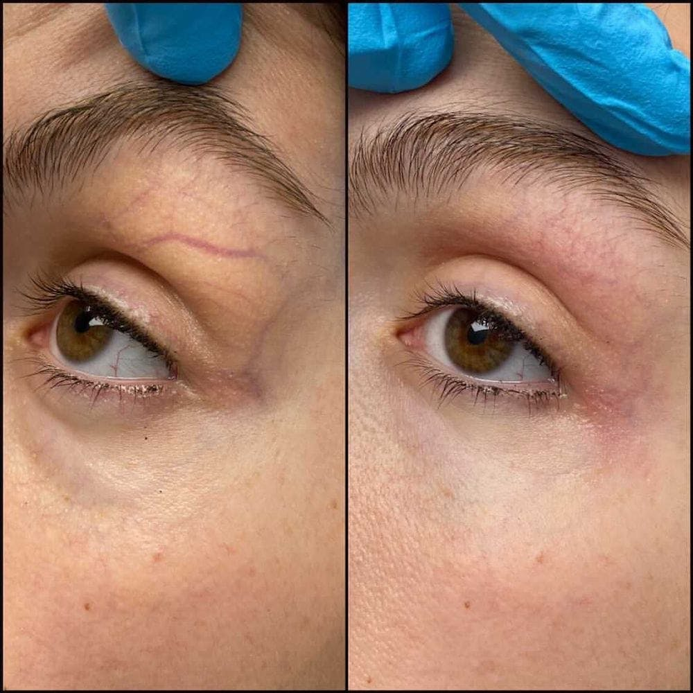 Laser Treatments Gallery - Patient 54039424 - Image 1