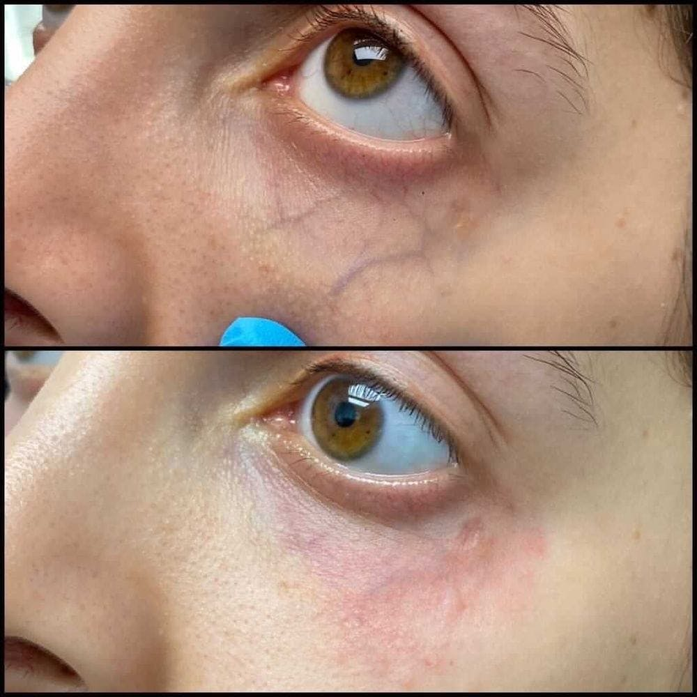 Laser Treatments Gallery - Patient 54039425 - Image 1