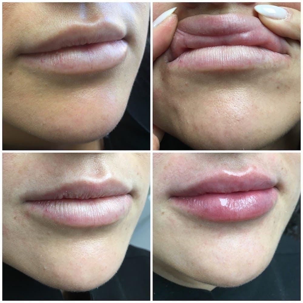 Lip Enhancement Gallery - Patient 54185598 - Image 1