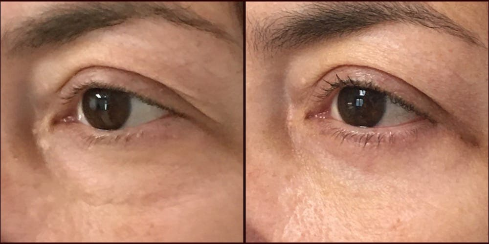 Lower Blepharoplasty Gallery - Patient 53591869 - Image 1