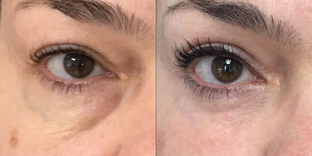 Lower Blepharoplasty Gallery - Patient 53591872 - Image 1