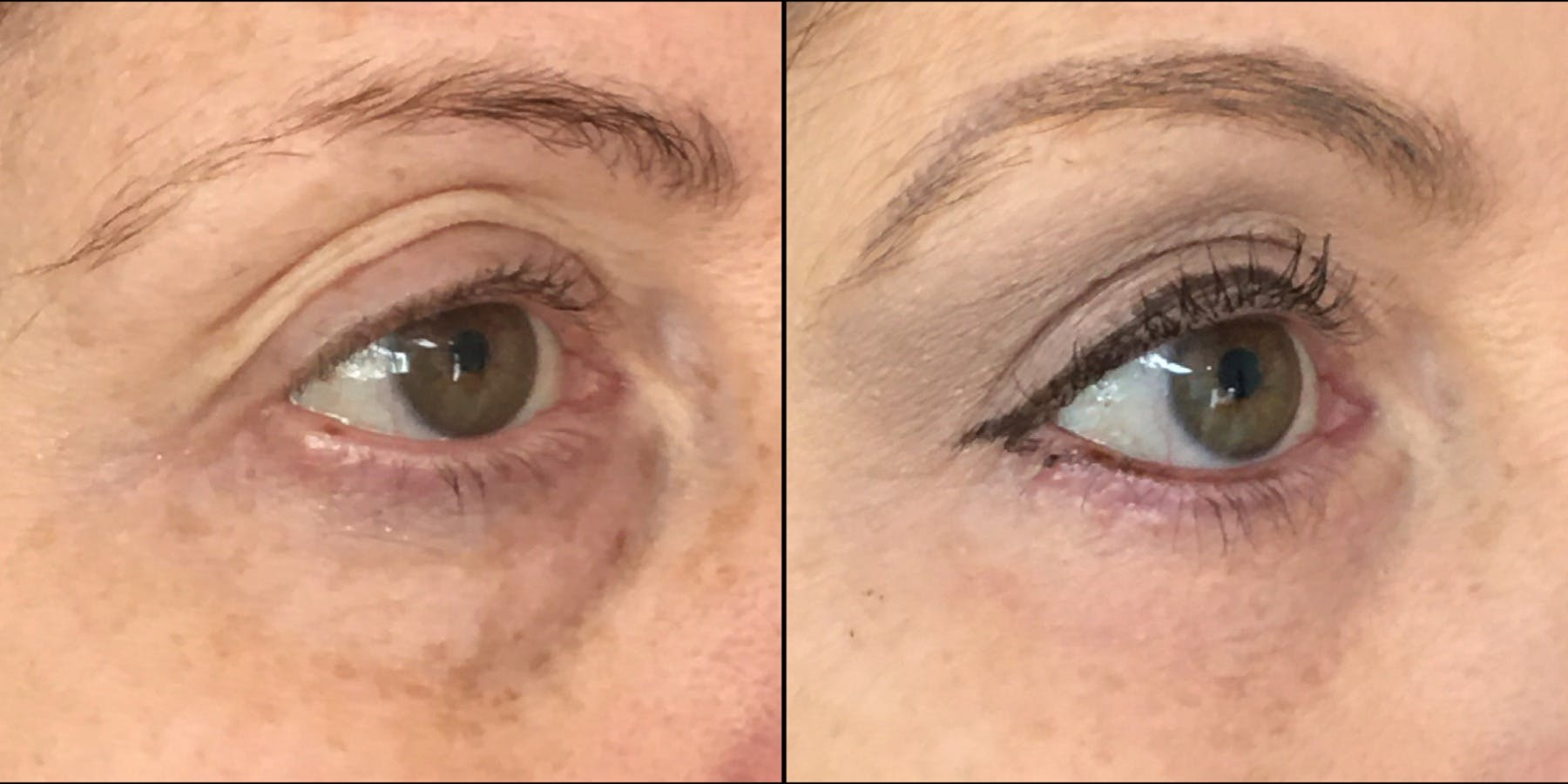 Lower Blepharoplasty Gallery - Patient 53591867 - Image 1