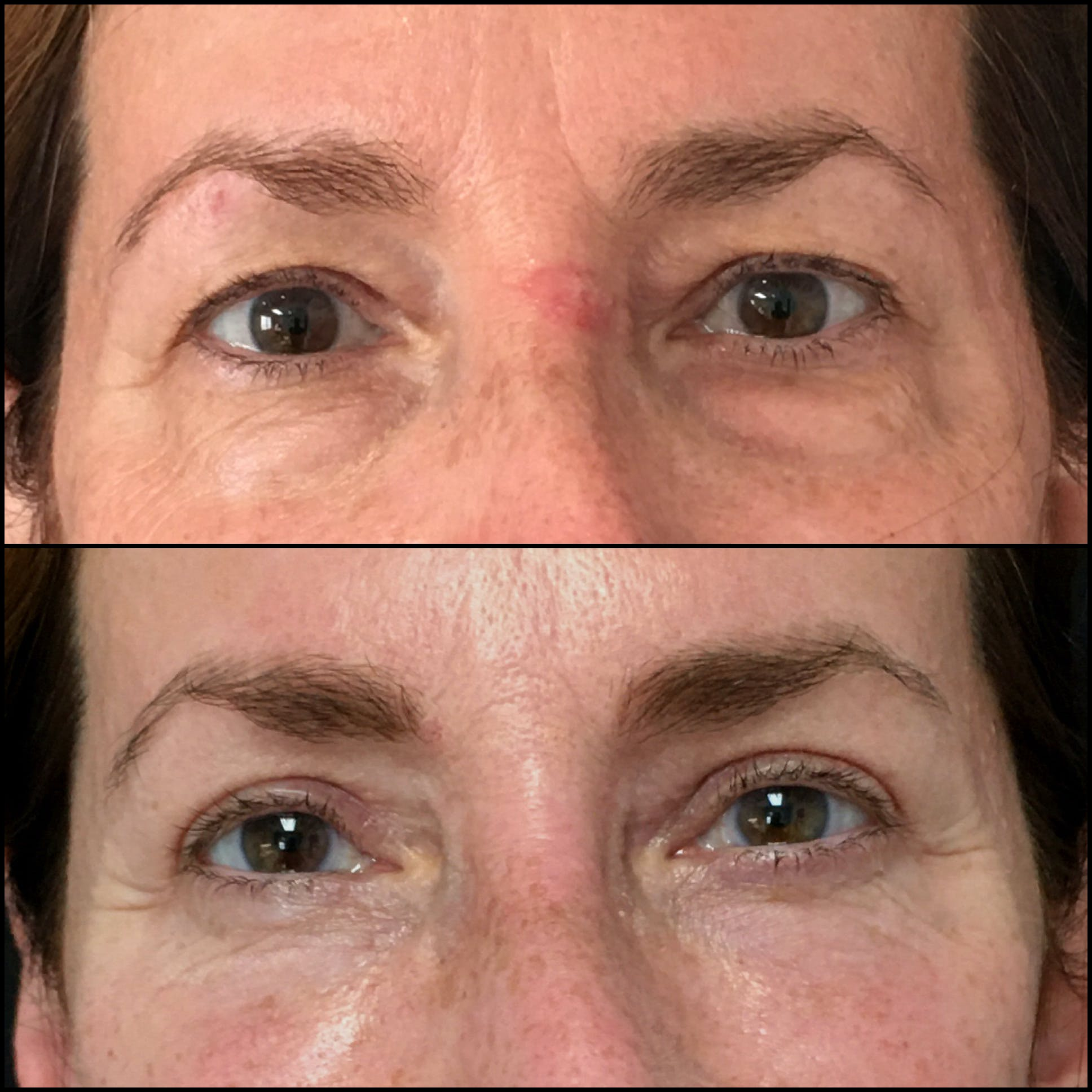 Lower Blepharoplasty Gallery - Patient 54385505 - Image 1