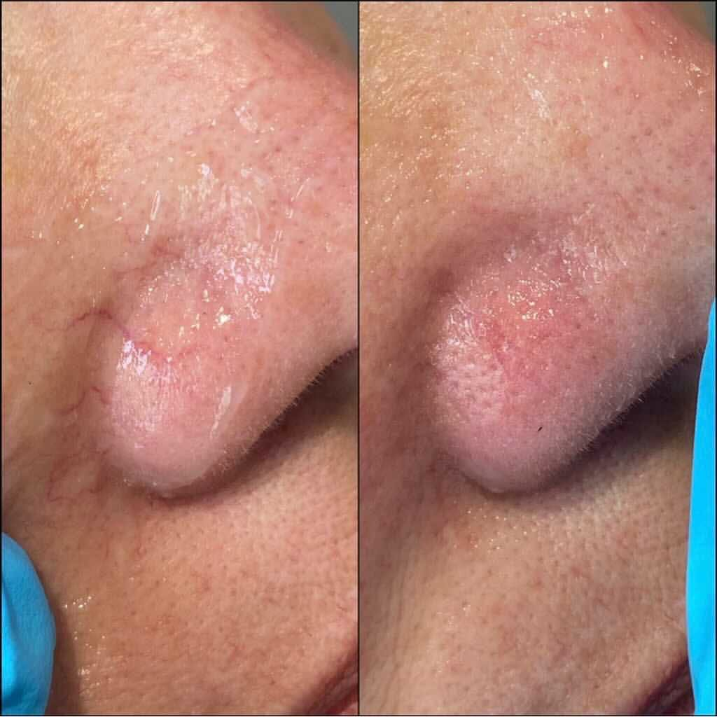 Laser Treatments Gallery - Patient 55260492 - Image 1