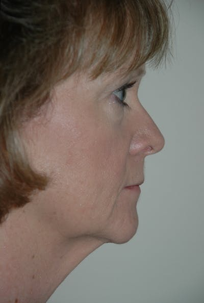 Facelift Gallery - Patient 53599892 - Image 3