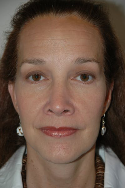 Eyelid surgery Gallery - Patient 52668511 - Image 2