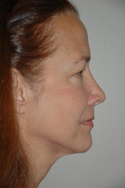 Eyelid surgery Gallery - Patient 52668511 - Image 3