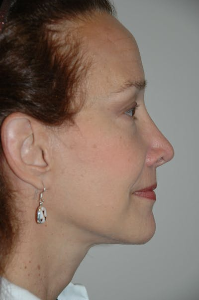 Eyelid surgery Gallery - Patient 52668511 - Image 4