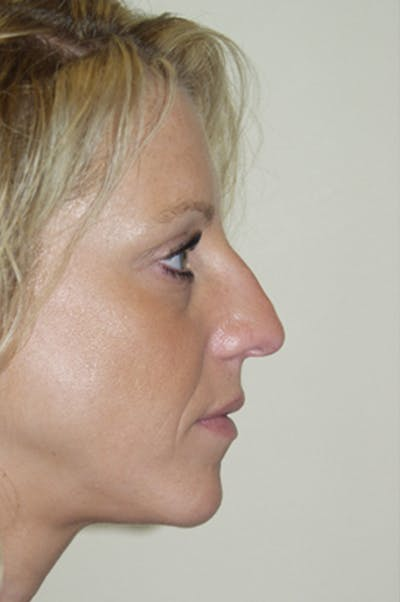 Rhinoplasty Gallery - Patient 52507131 - Image 1