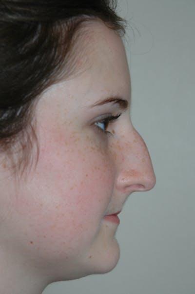 Rhinoplasty Gallery - Patient 52507133 - Image 1
