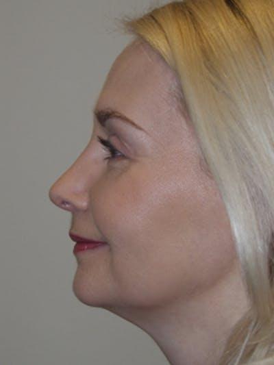 Rhinoplasty Gallery - Patient 52668586 - Image 2
