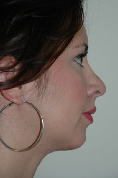 Chin Implant Gallery - Patient 50814954 - Image 2
