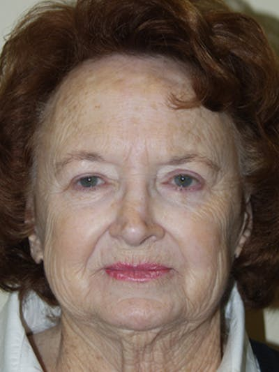 Full Face Laser Gallery - Patient 52506958 - Image 1