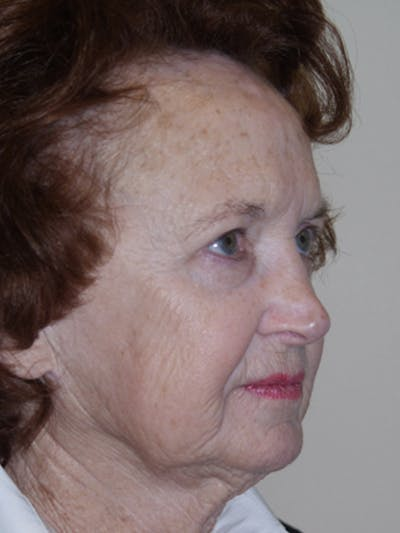 Full Face Laser Gallery - Patient 52506958 - Image 3