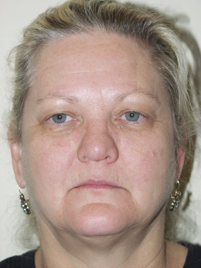 Eyelid surgery Gallery - Patient 53599591 - Image 1