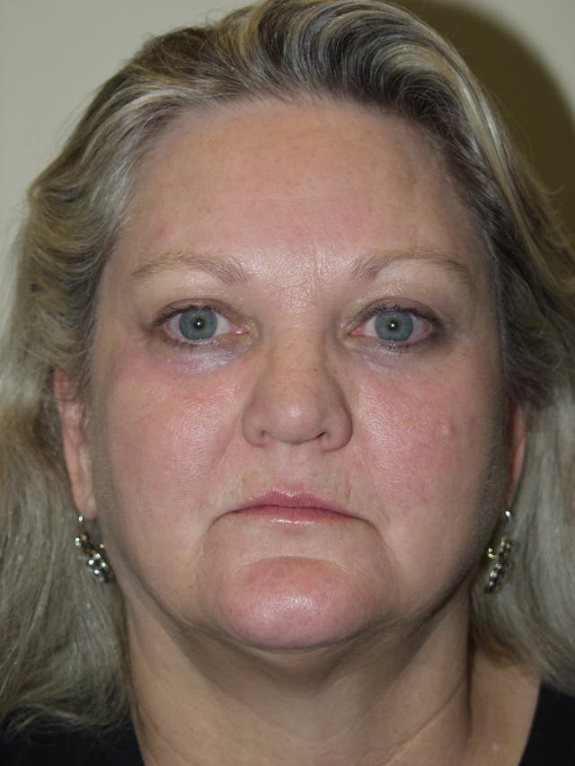 Eyelid surgery Gallery - Patient 53599591 - Image 2