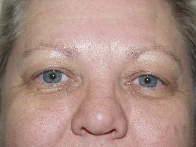 Eyelid surgery Gallery - Patient 53599591 - Image 3