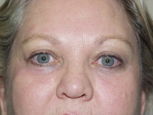 Eyelid surgery Gallery - Patient 53599591 - Image 4