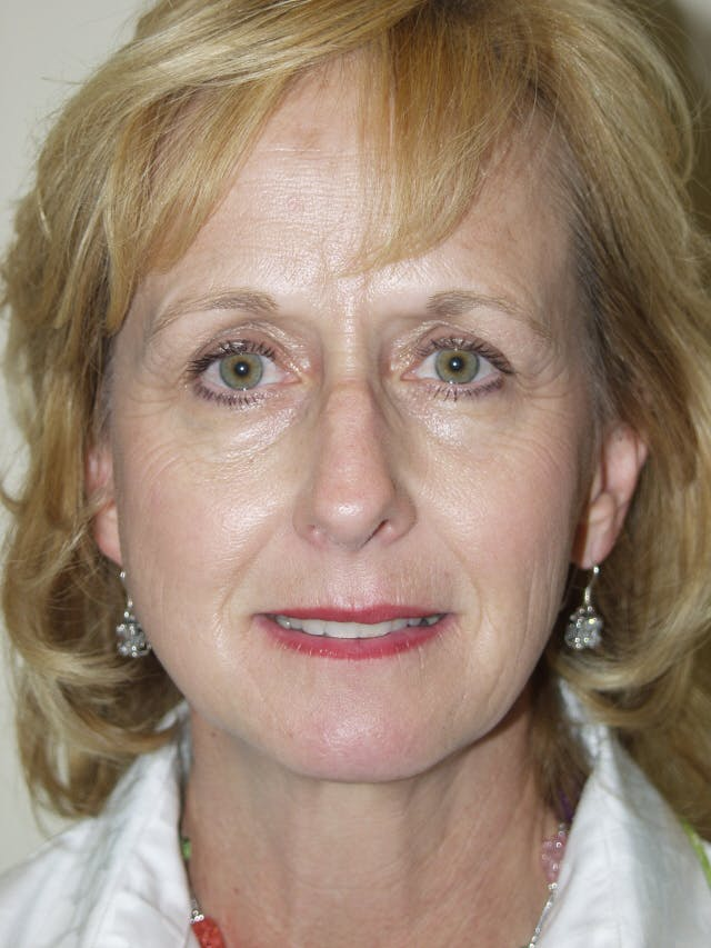 Eyelid surgery Gallery - Patient 53599595 - Image 1