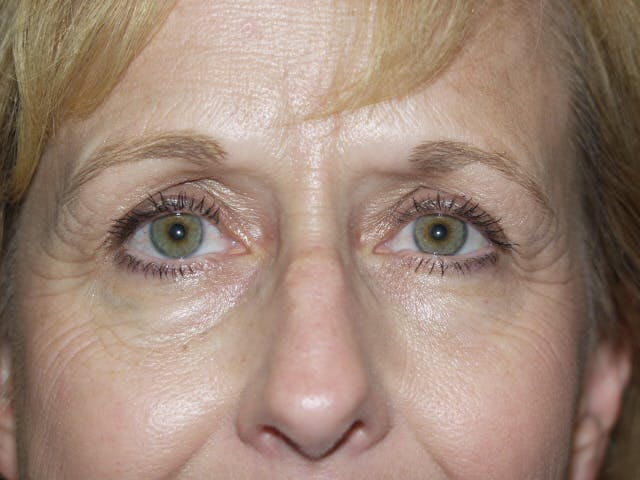 Eyelid surgery Gallery - Patient 53599595 - Image 3