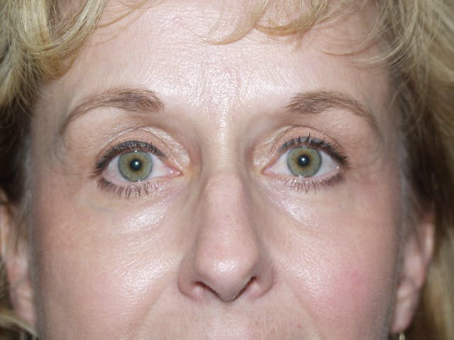 Eyelid surgery Gallery - Patient 53599595 - Image 4