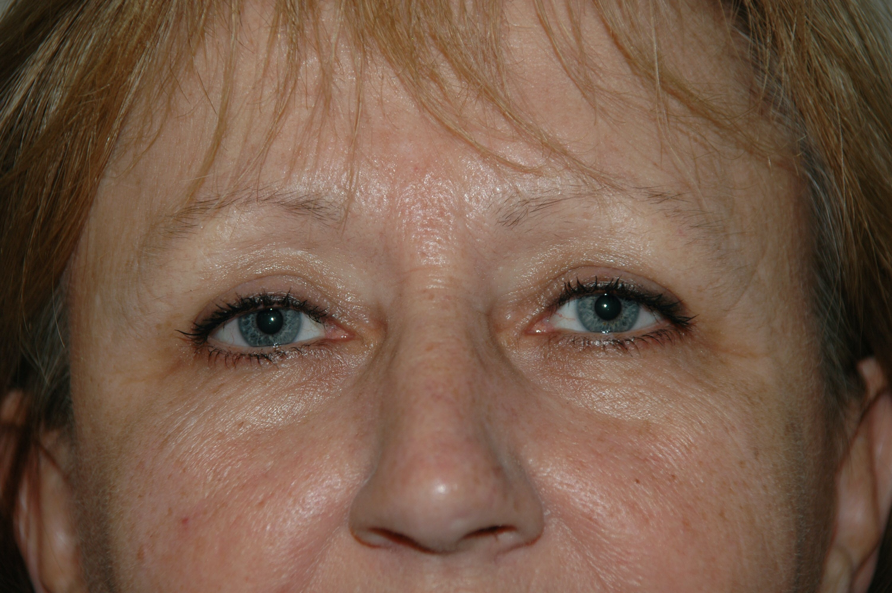 Eyelid surgery Gallery - Patient 53599596 - Image 3
