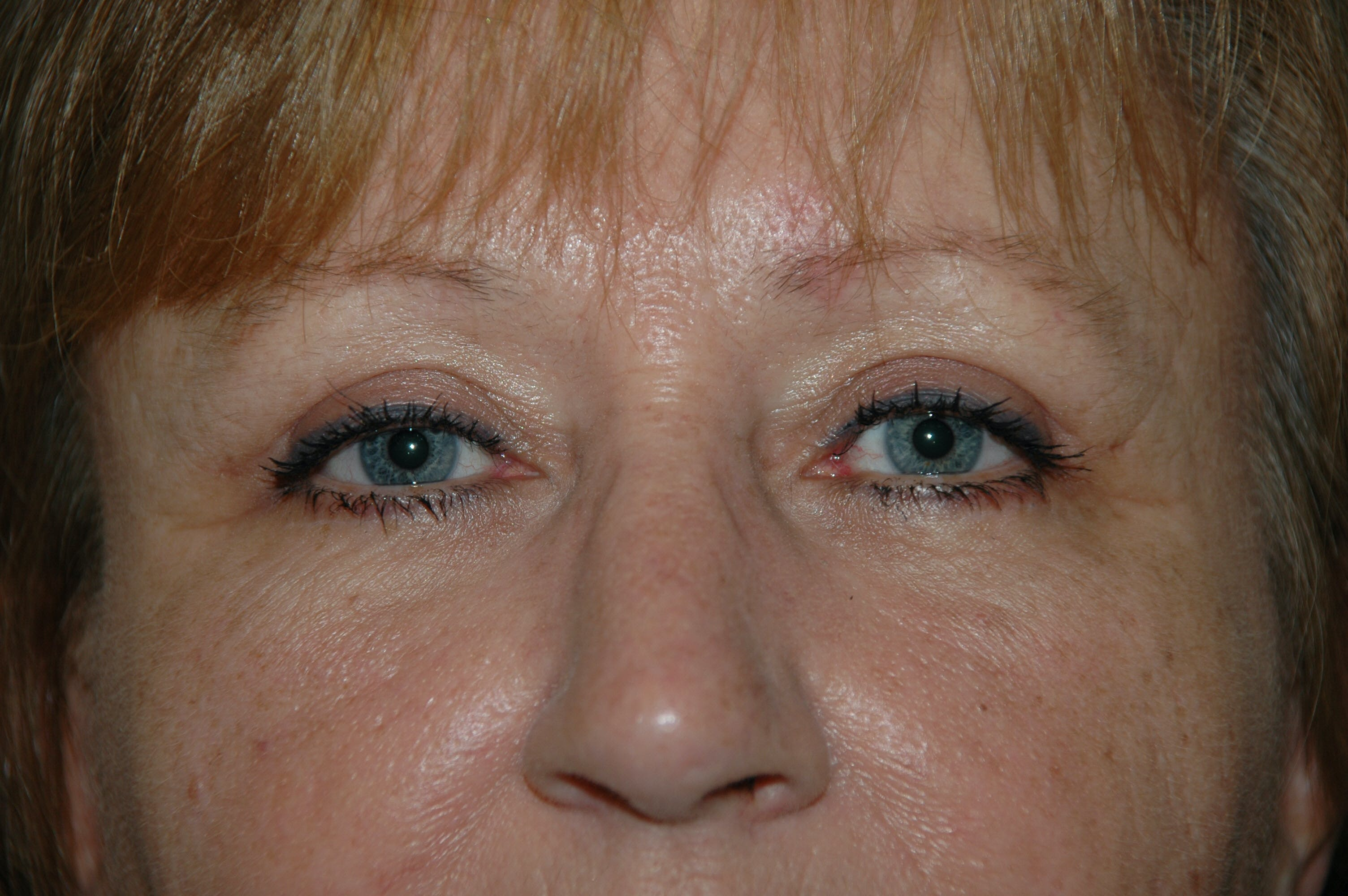 Eyelid surgery Gallery - Patient 53599596 - Image 4