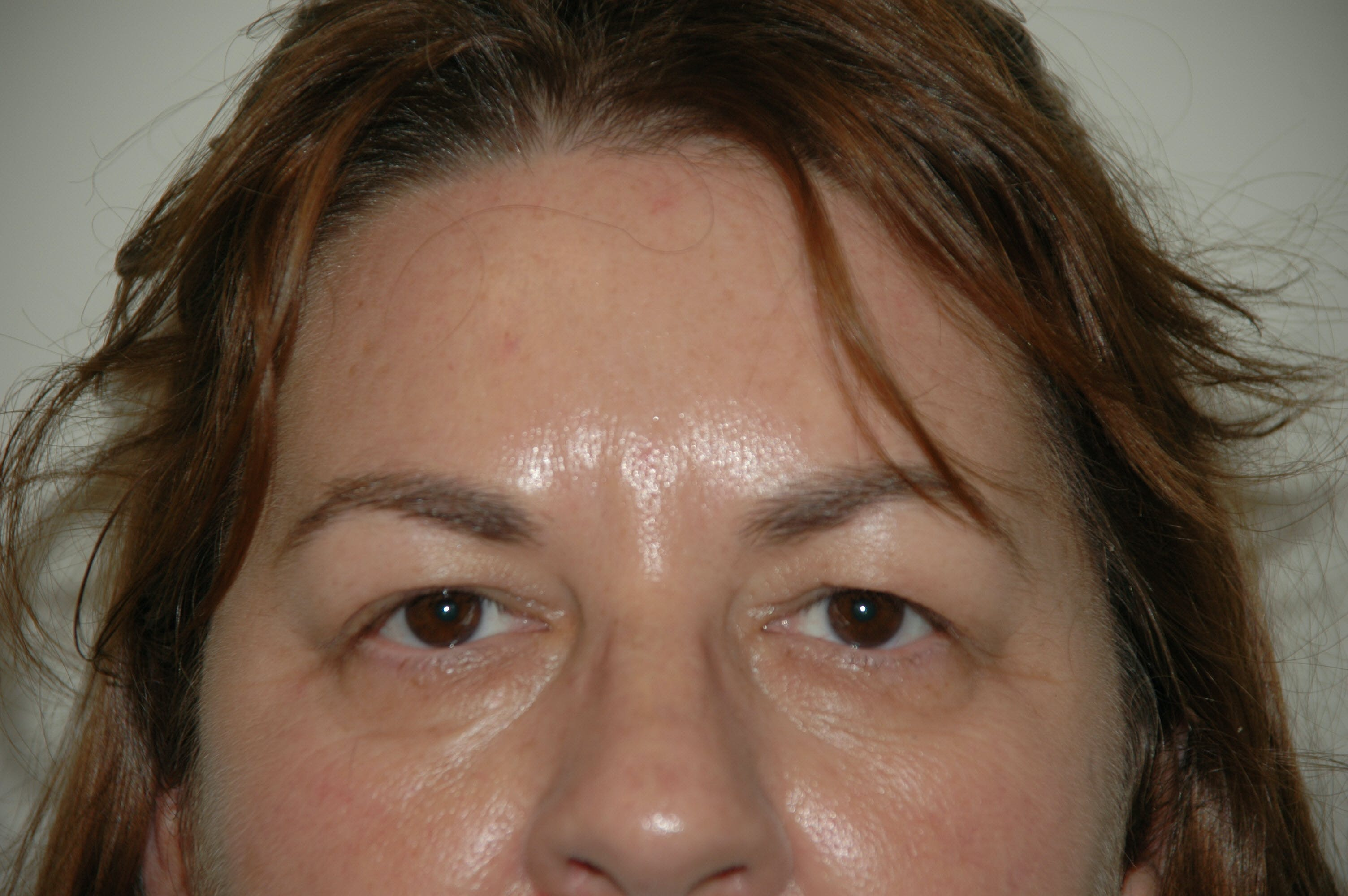 Eyelid surgery Gallery - Patient 53599611 - Image 1
