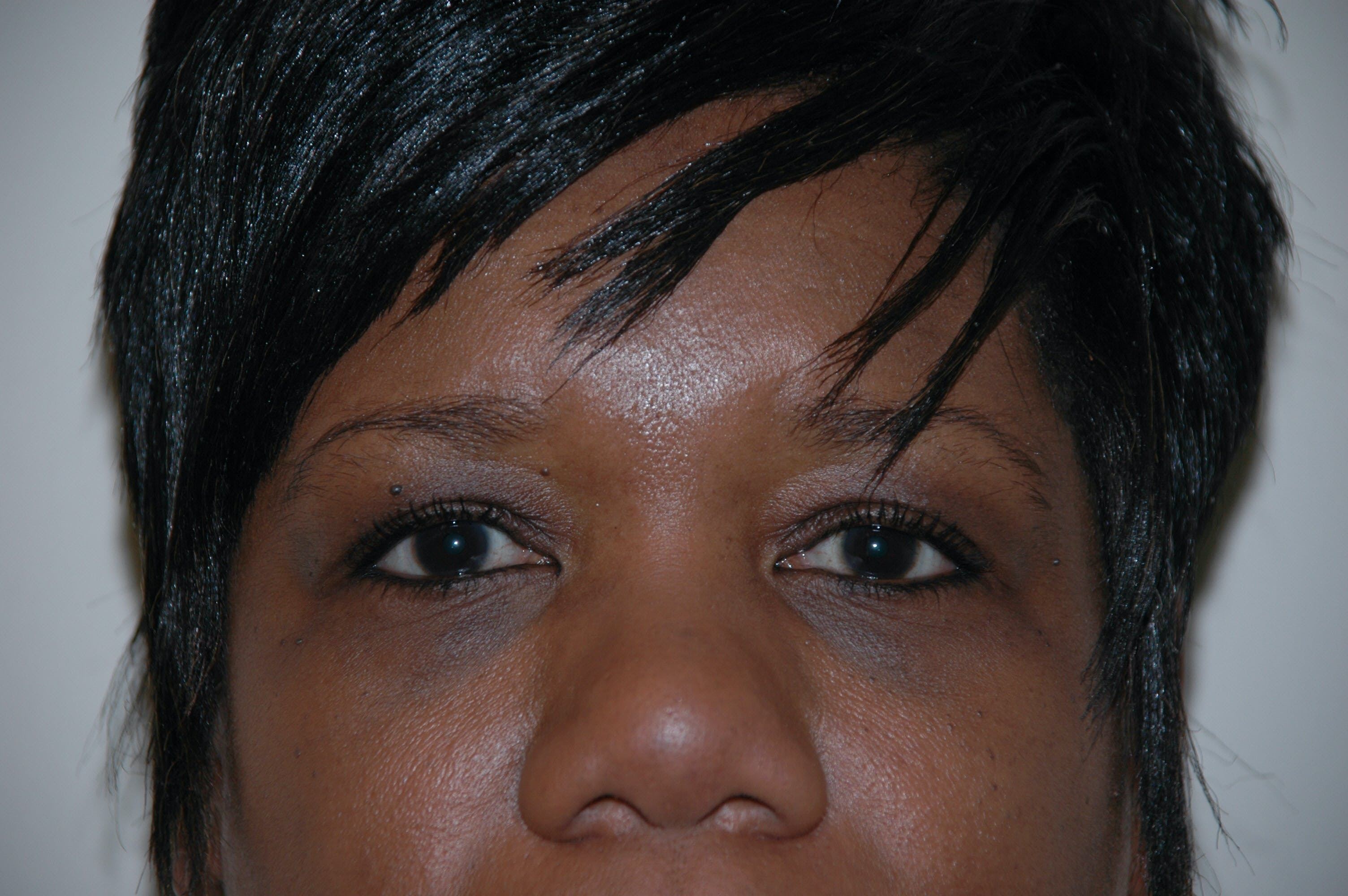 Eyelid surgery Gallery - Patient 53599627 - Image 1