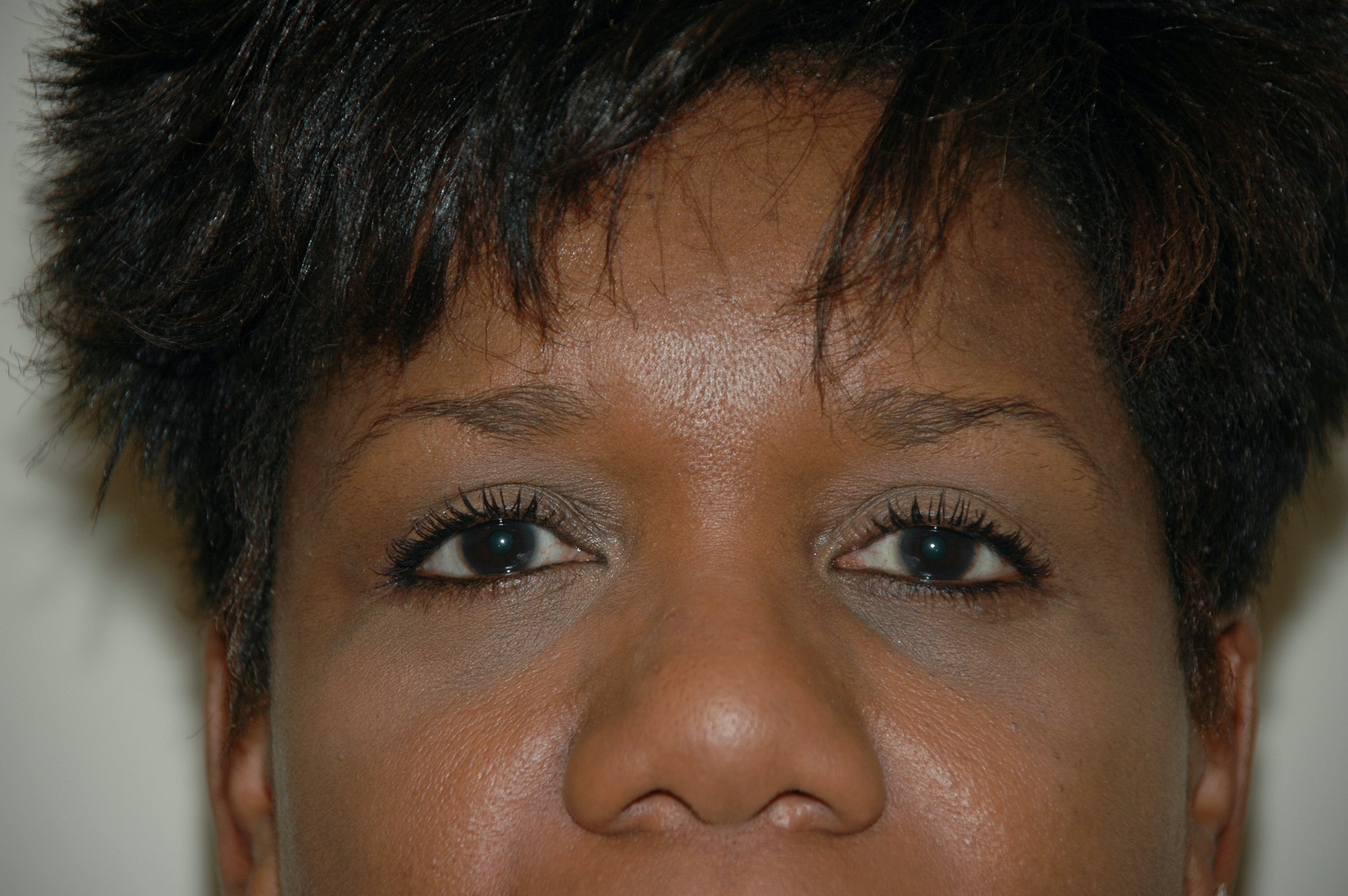 Eyelid surgery Gallery - Patient 53599627 - Image 2