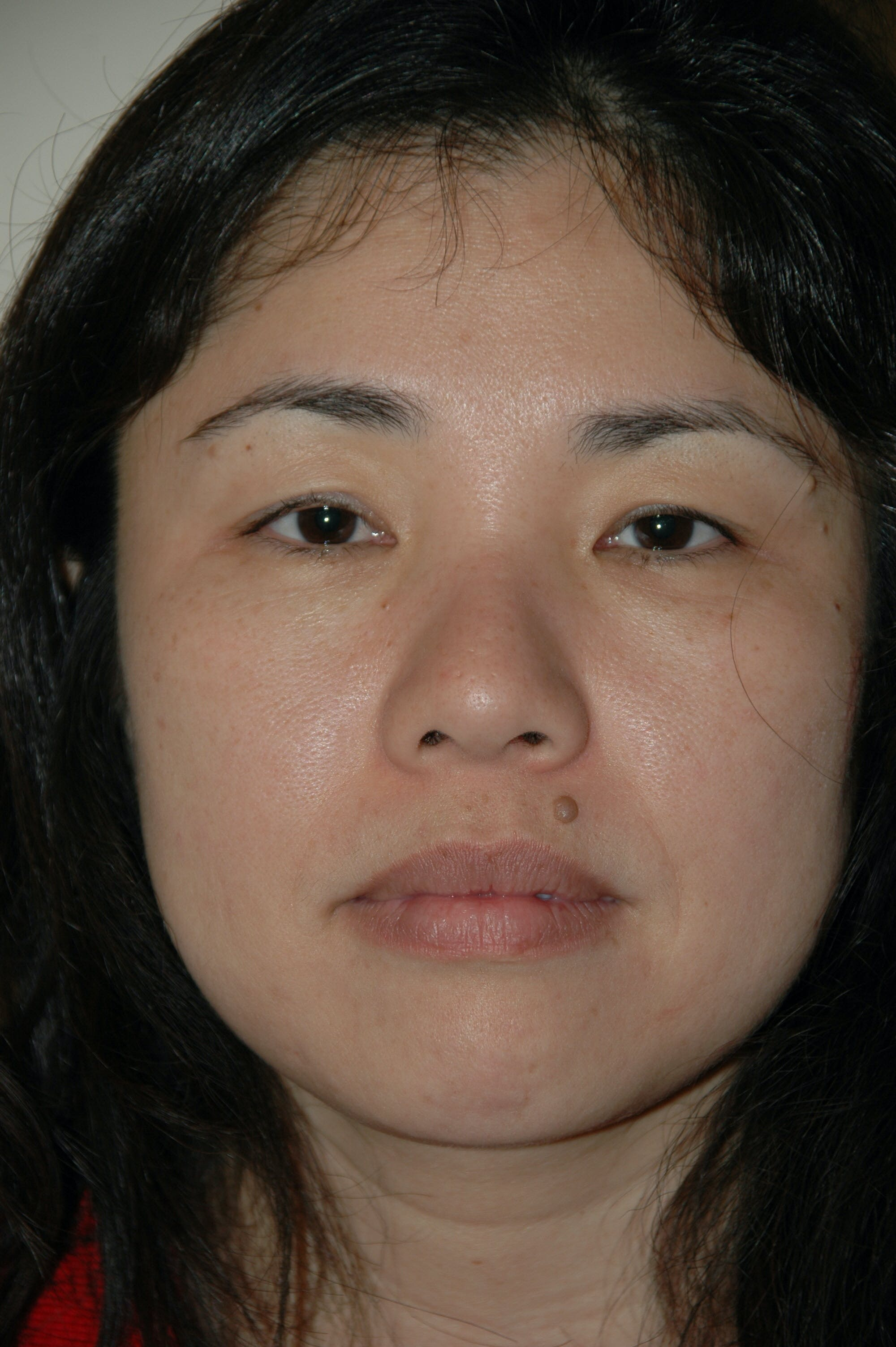 Eyelid surgery Gallery - Patient 53599628 - Image 1