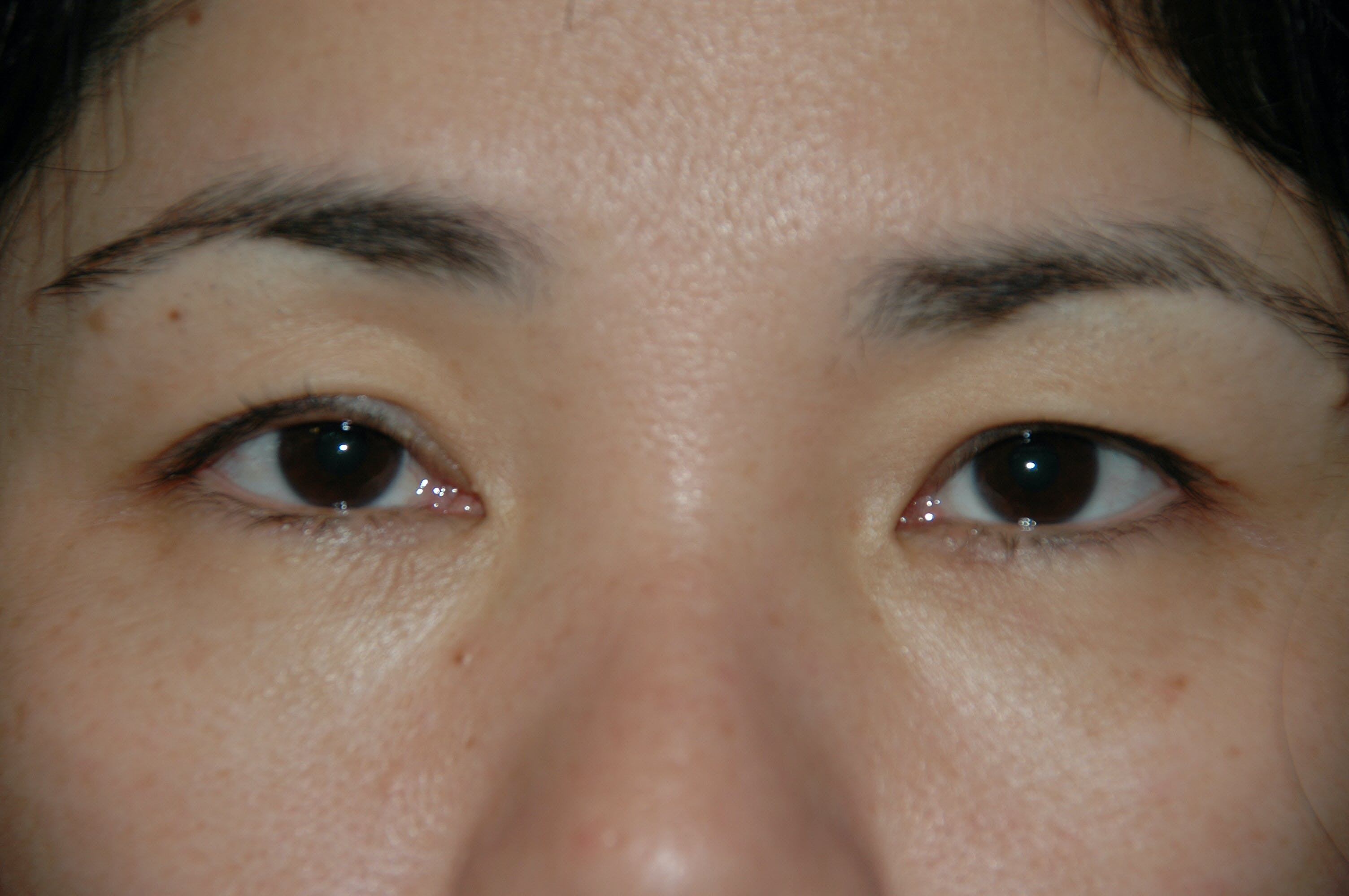 Eyelid surgery Gallery - Patient 53599628 - Image 3