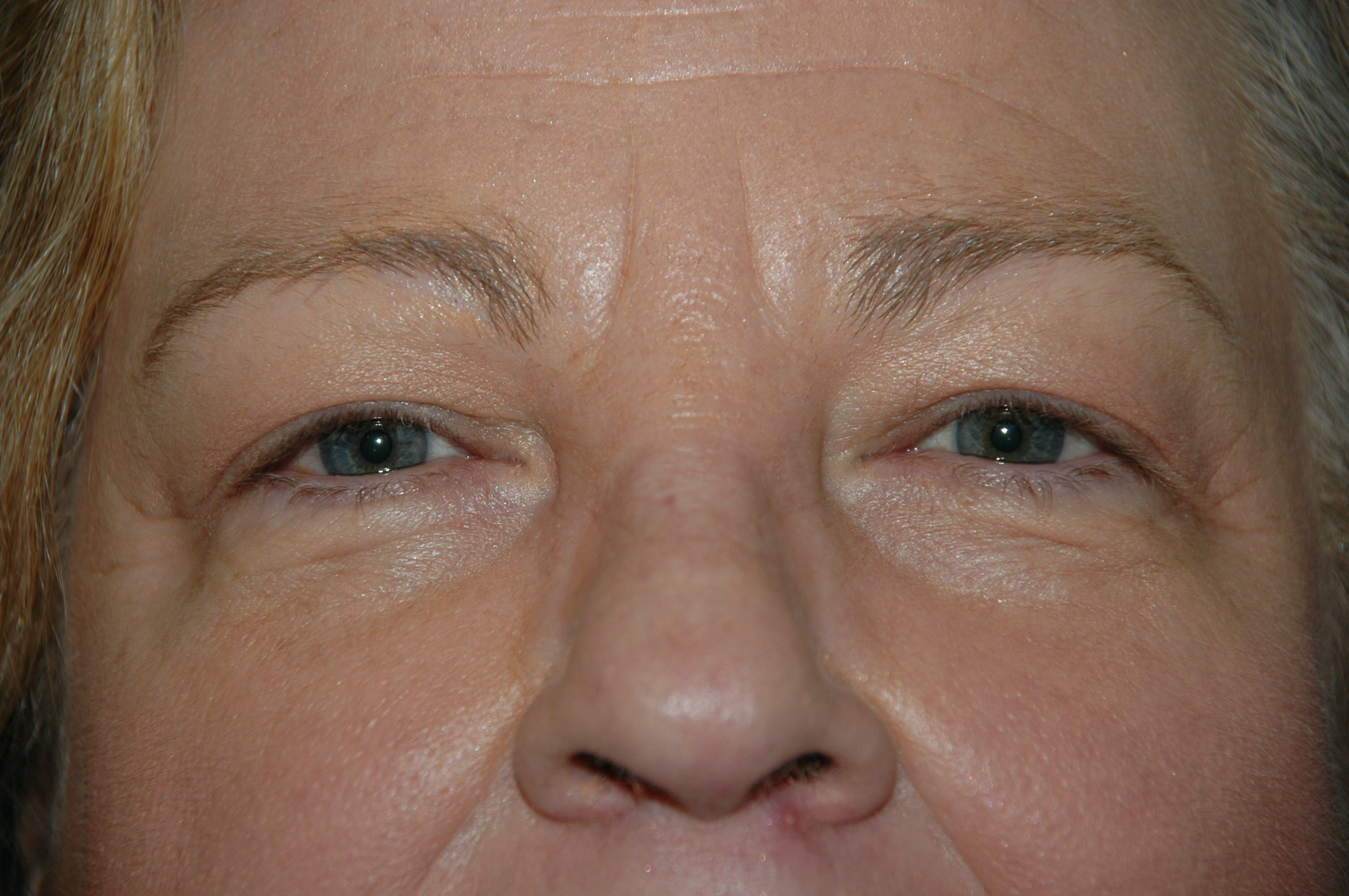 Eyelid surgery Gallery - Patient 53599679 - Image 1