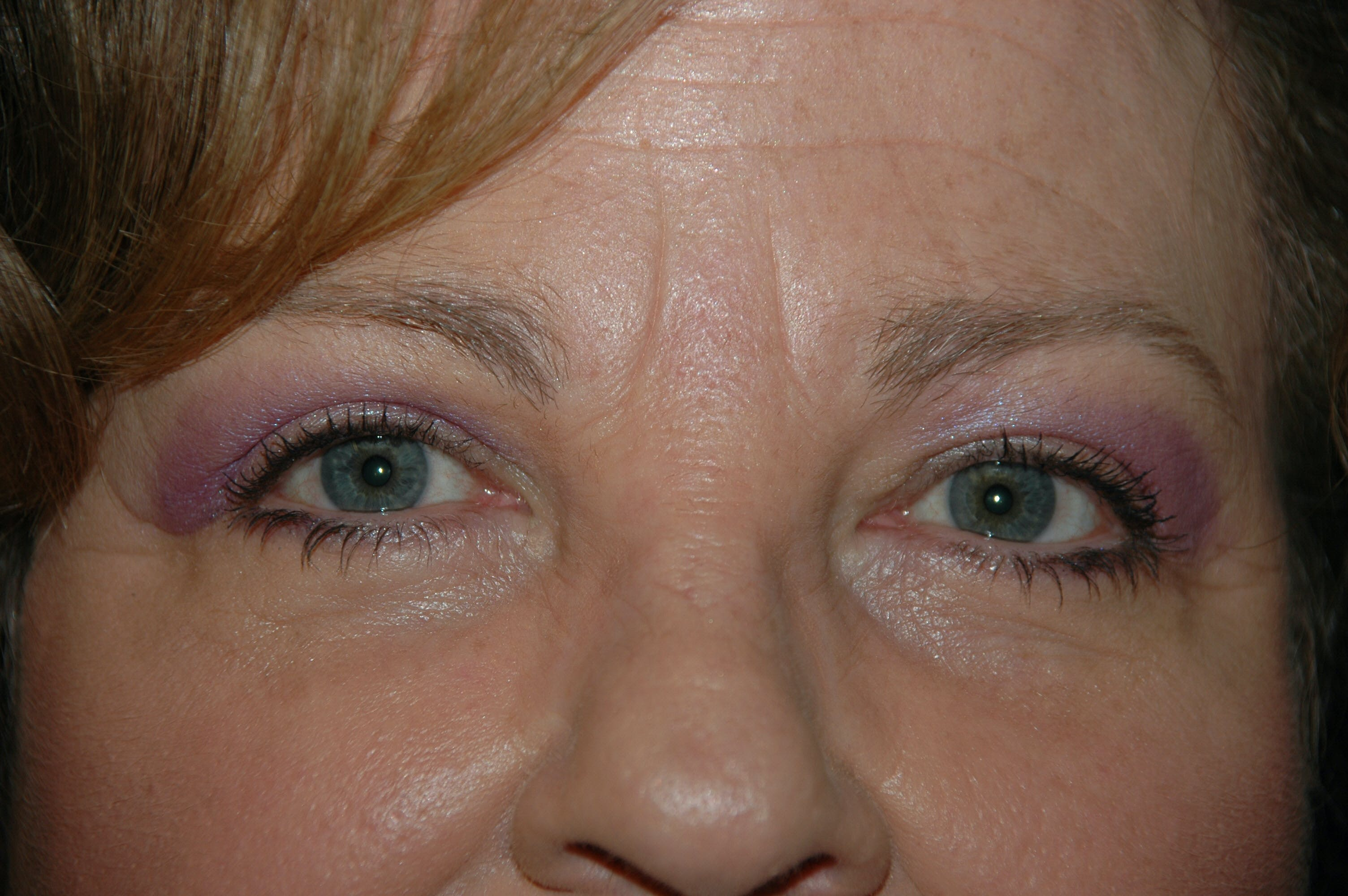 Eyelid surgery Gallery - Patient 53599679 - Image 2
