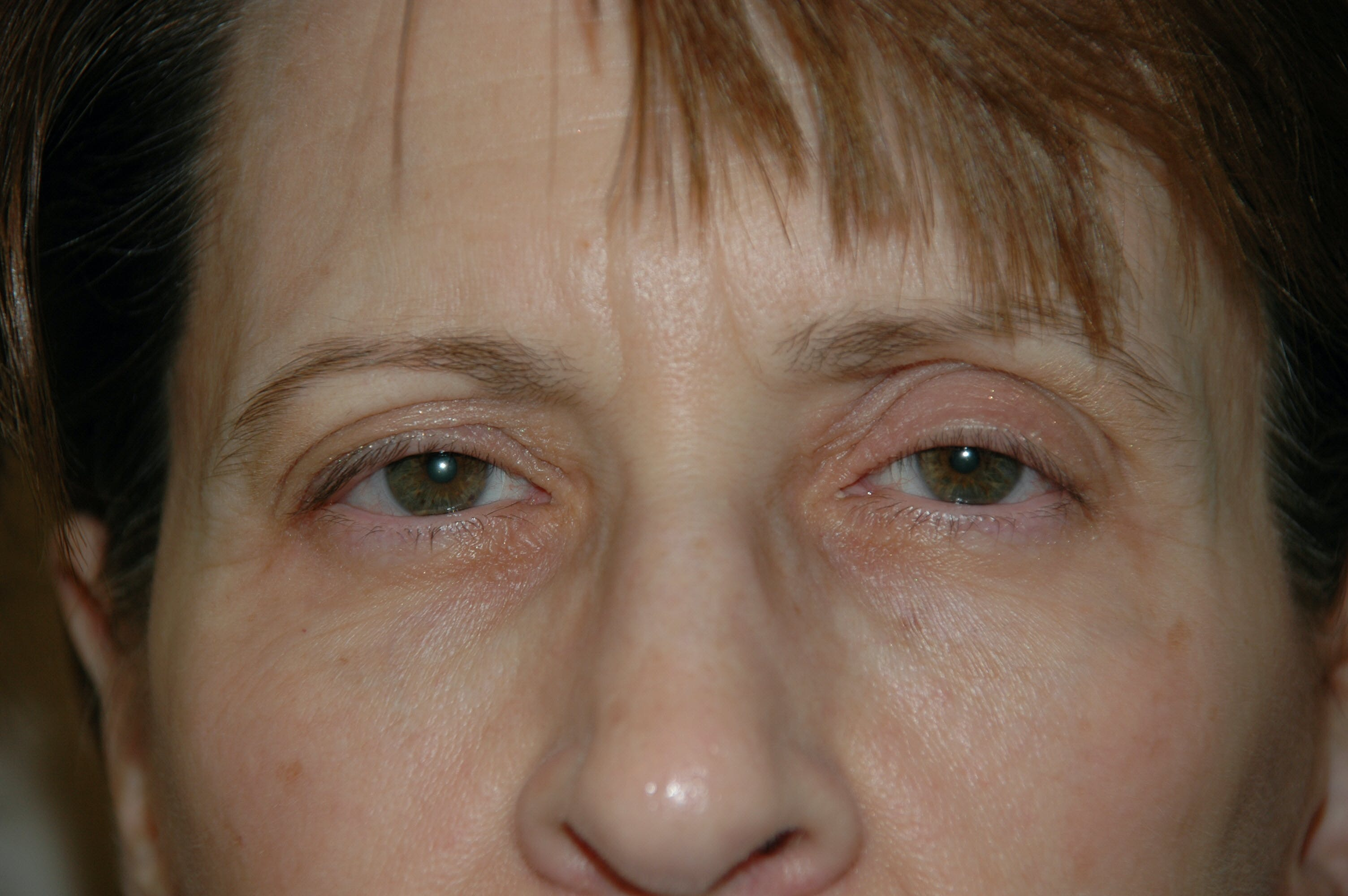 Eyelid surgery Gallery - Patient 53599680 - Image 1