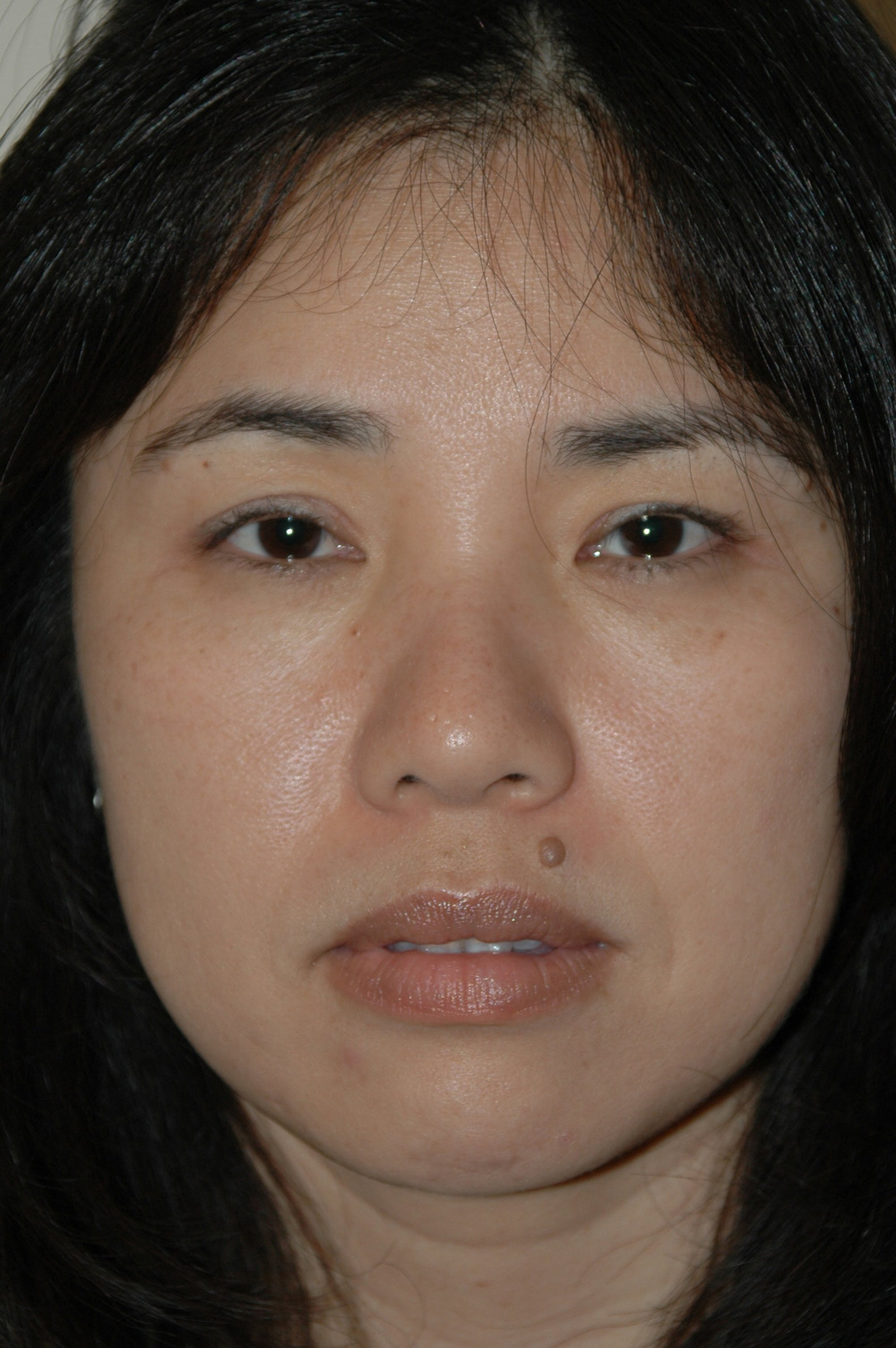 Eyelid surgery Gallery - Patient 53599628 - Image 2