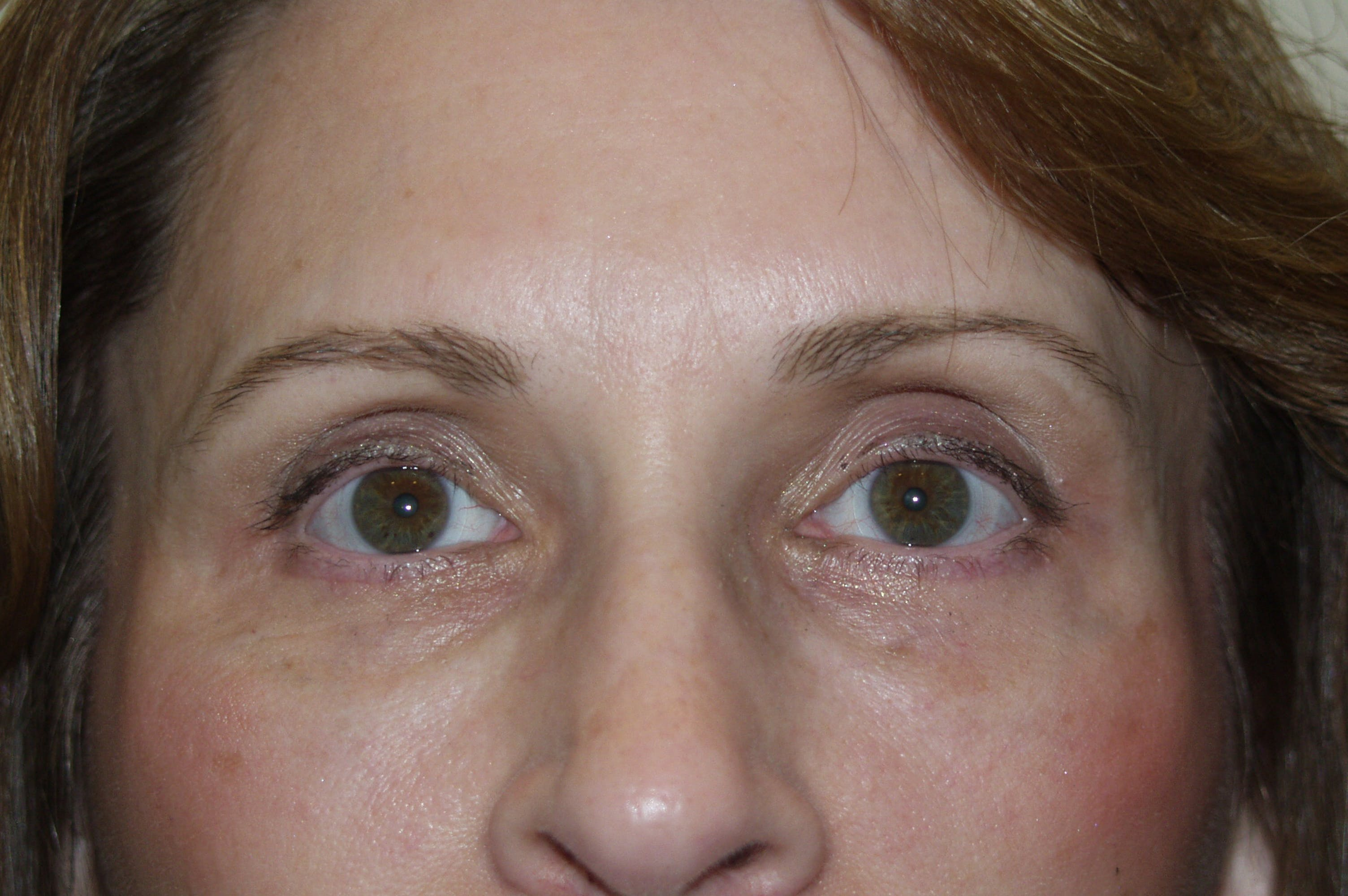 Eyelid surgery Gallery - Patient 53599680 - Image 2