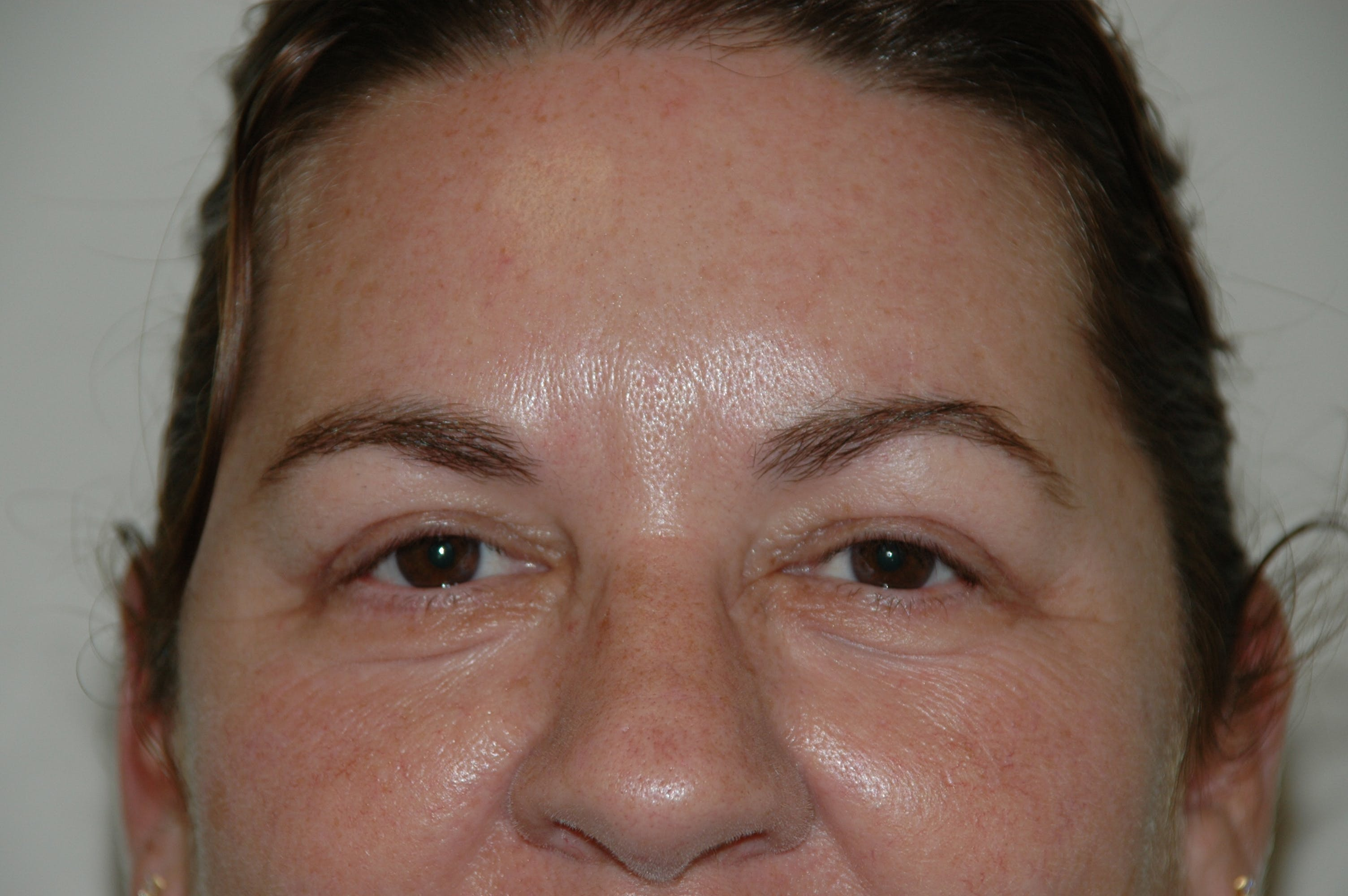 Eyelid surgery Gallery - Patient 53599611 - Image 2