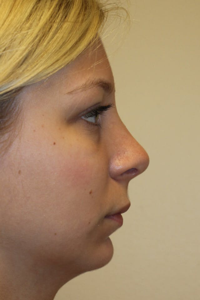 Chin Implant Gallery - Patient 53599803 - Image 2