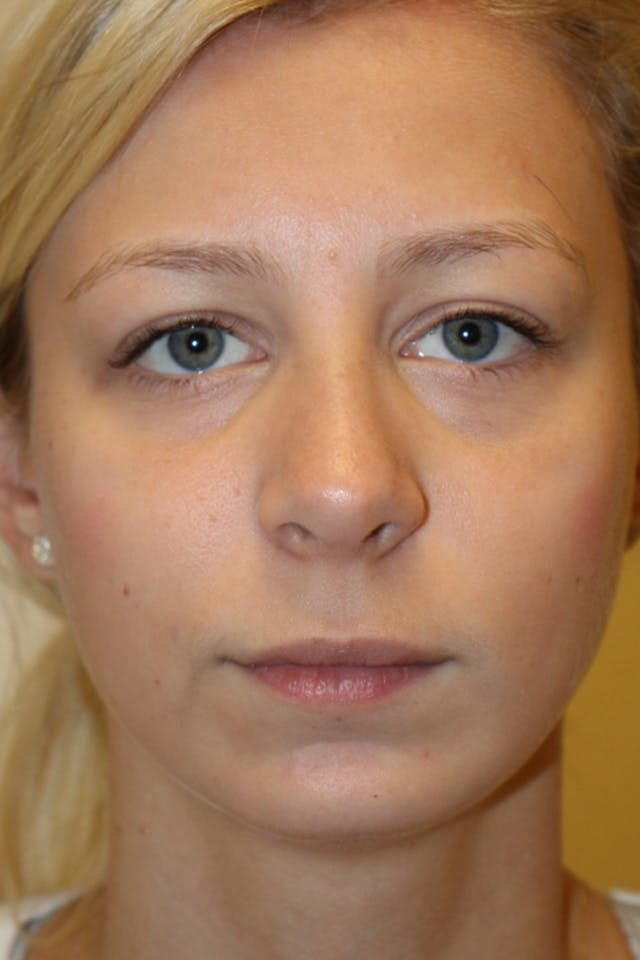 Chin Implant Gallery - Patient 53599803 - Image 4