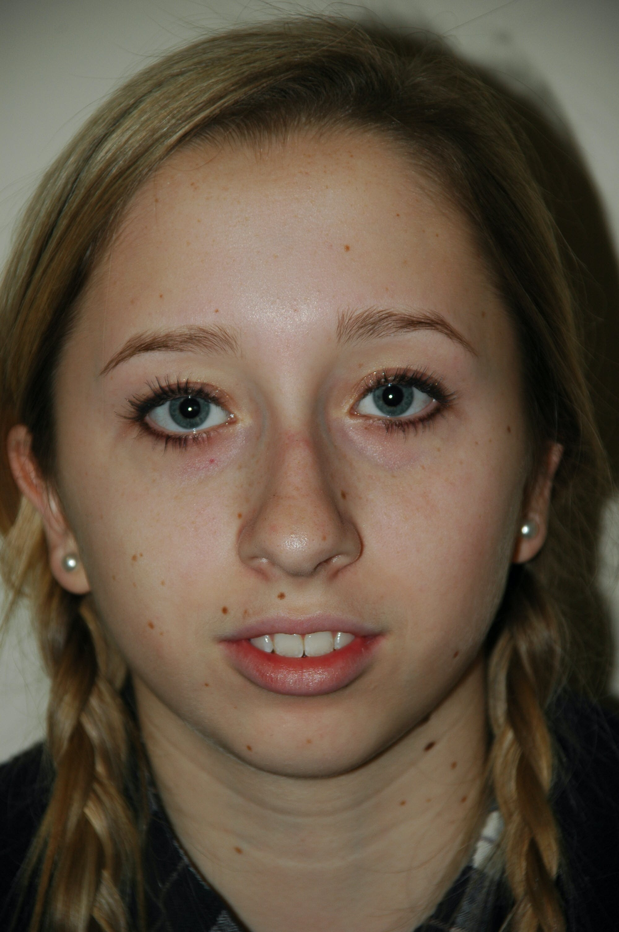 Chin Implant Gallery - Patient 53599838 - Image 3