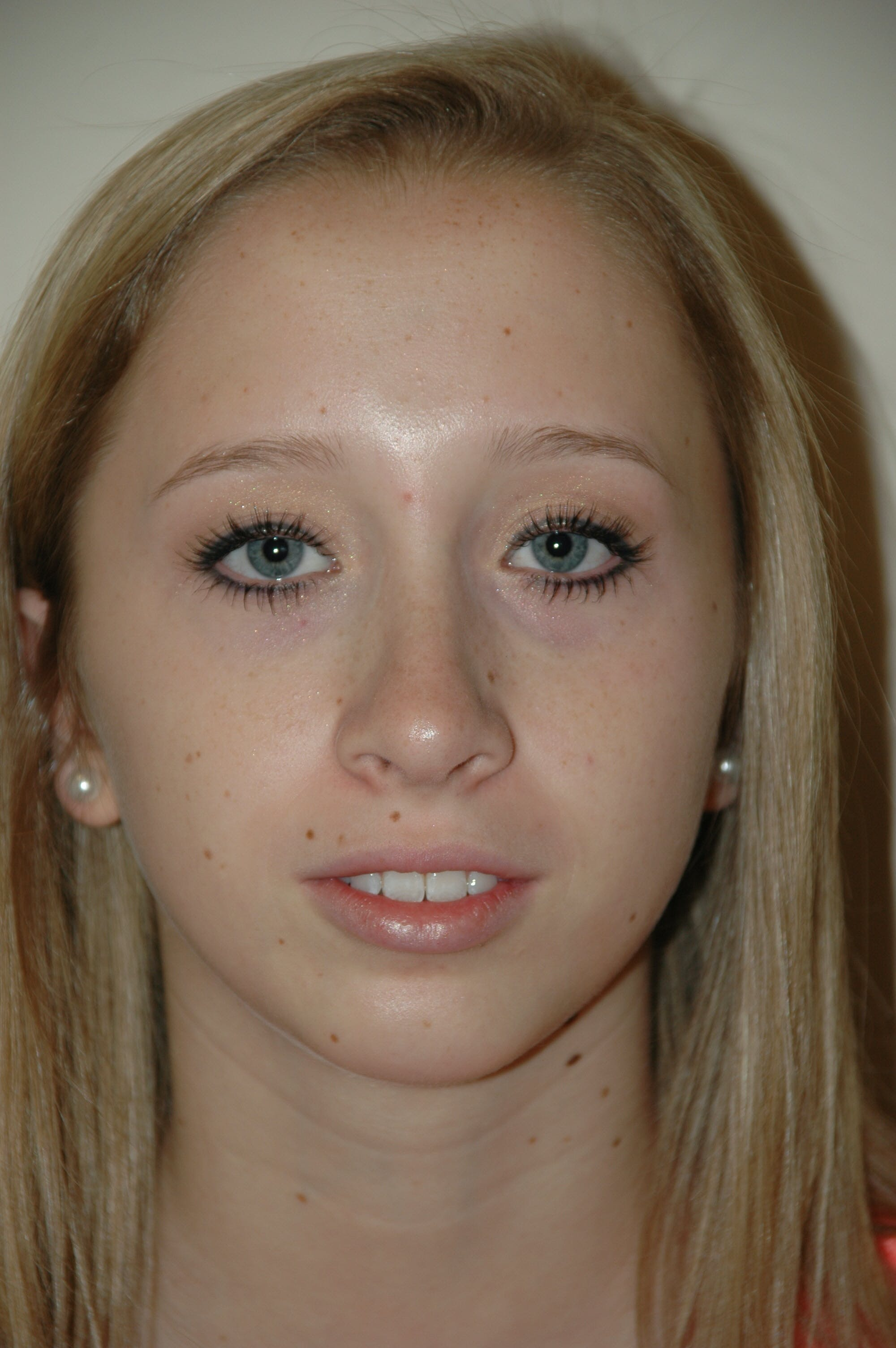 Chin Implant Gallery - Patient 53599838 - Image 4