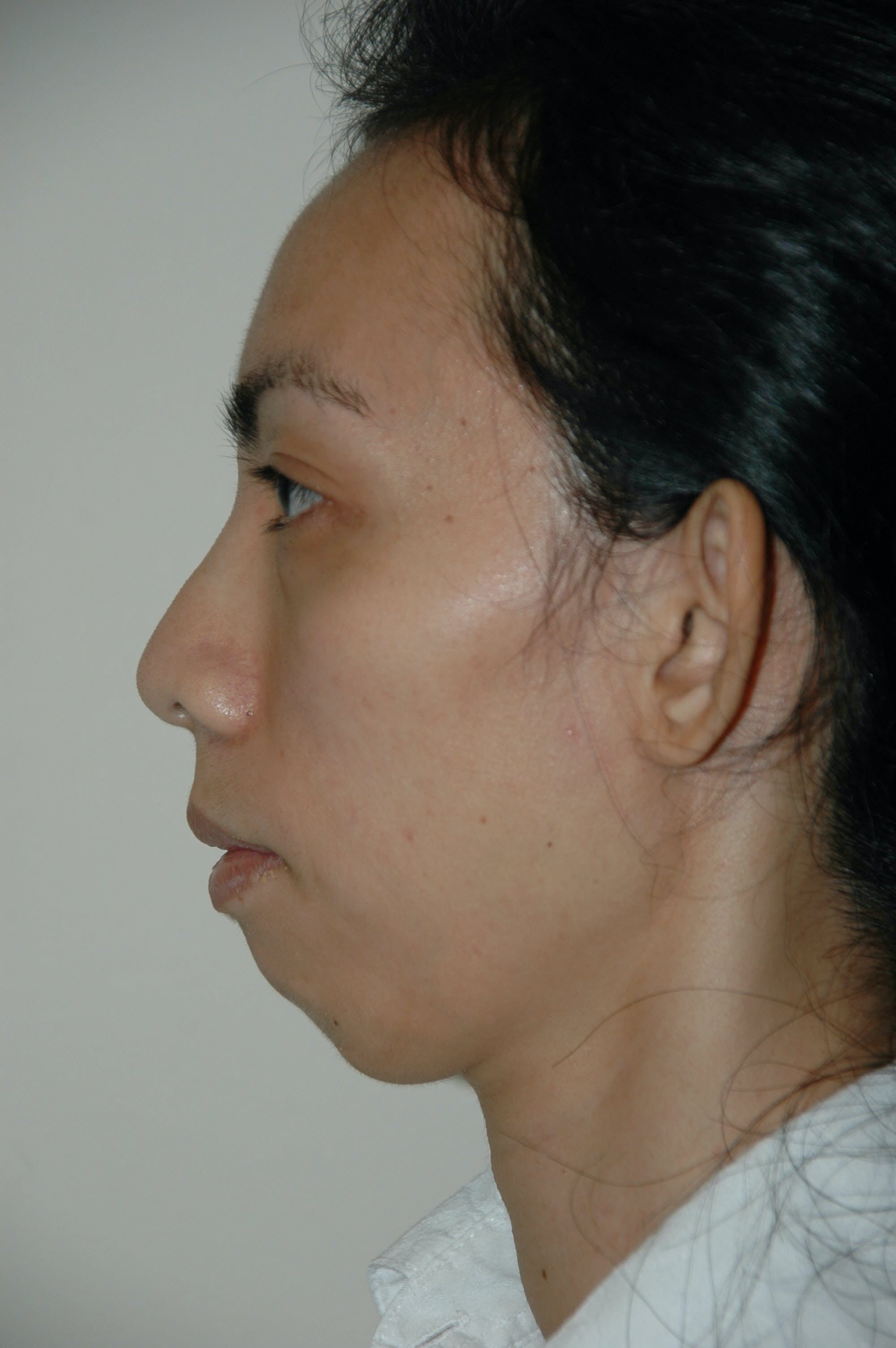 Chin Implant Gallery - Patient 53599848 - Image 1