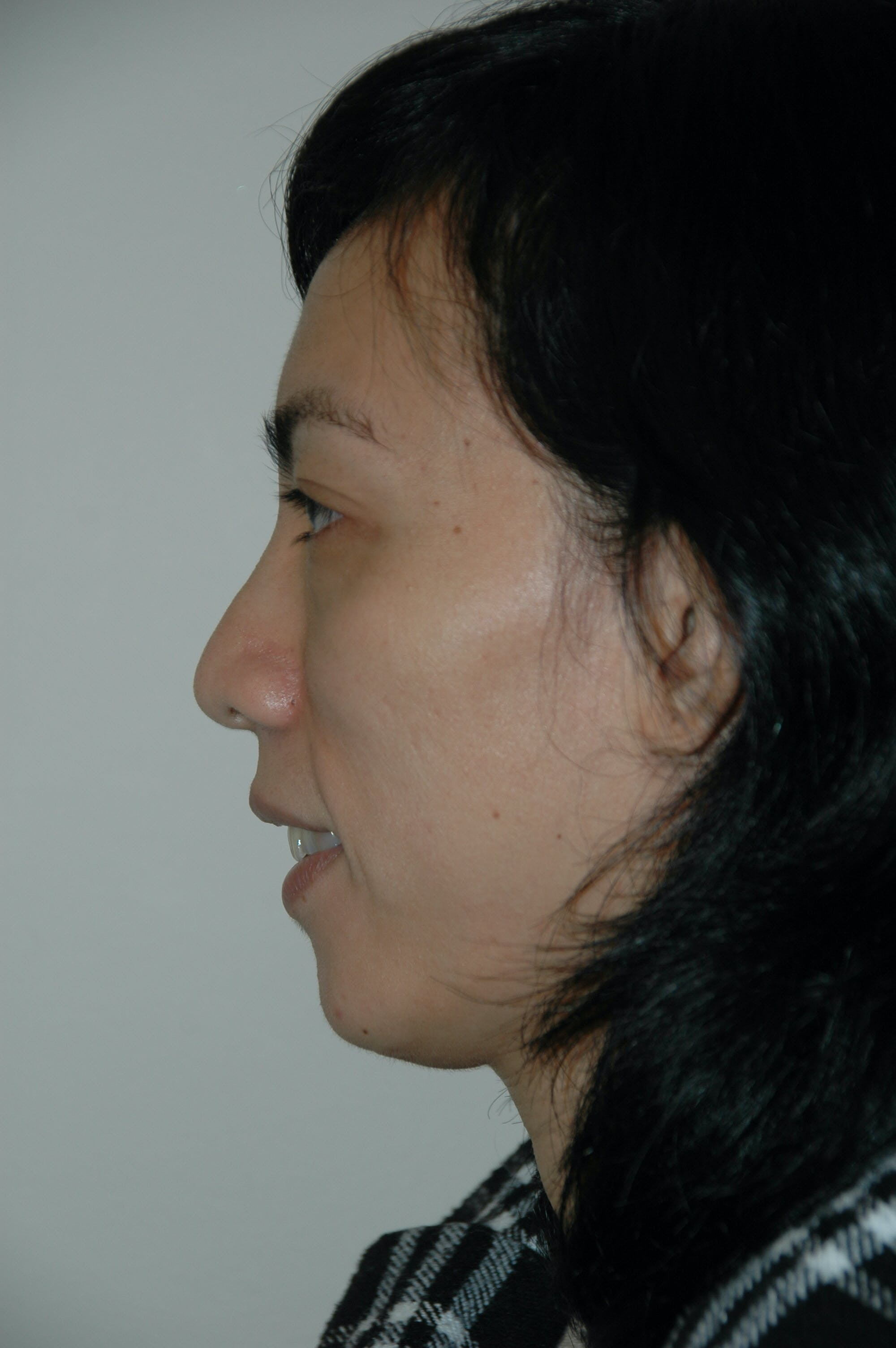 Chin Implant Gallery - Patient 53599848 - Image 2