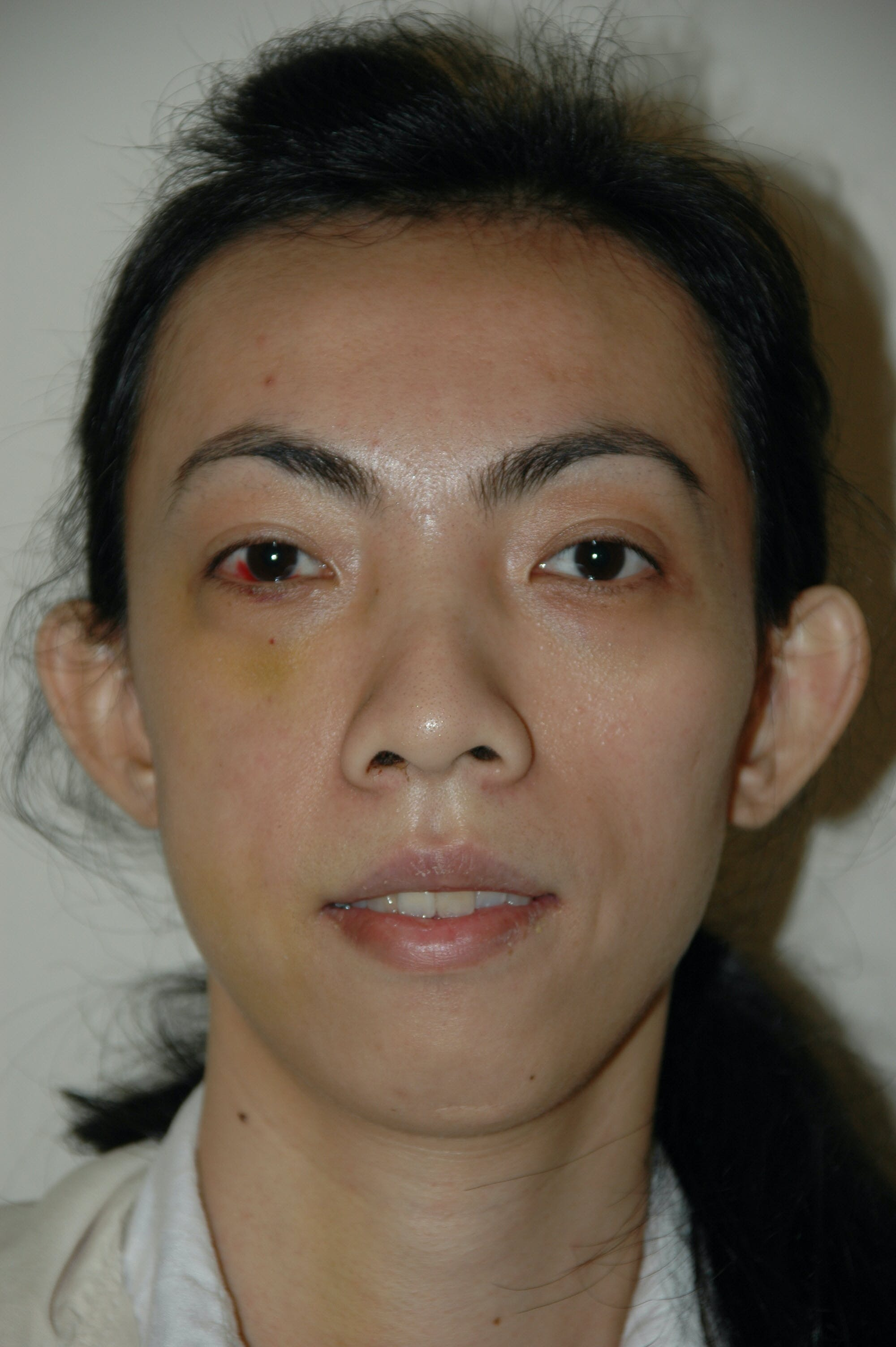 Chin Implant Gallery - Patient 53599848 - Image 3