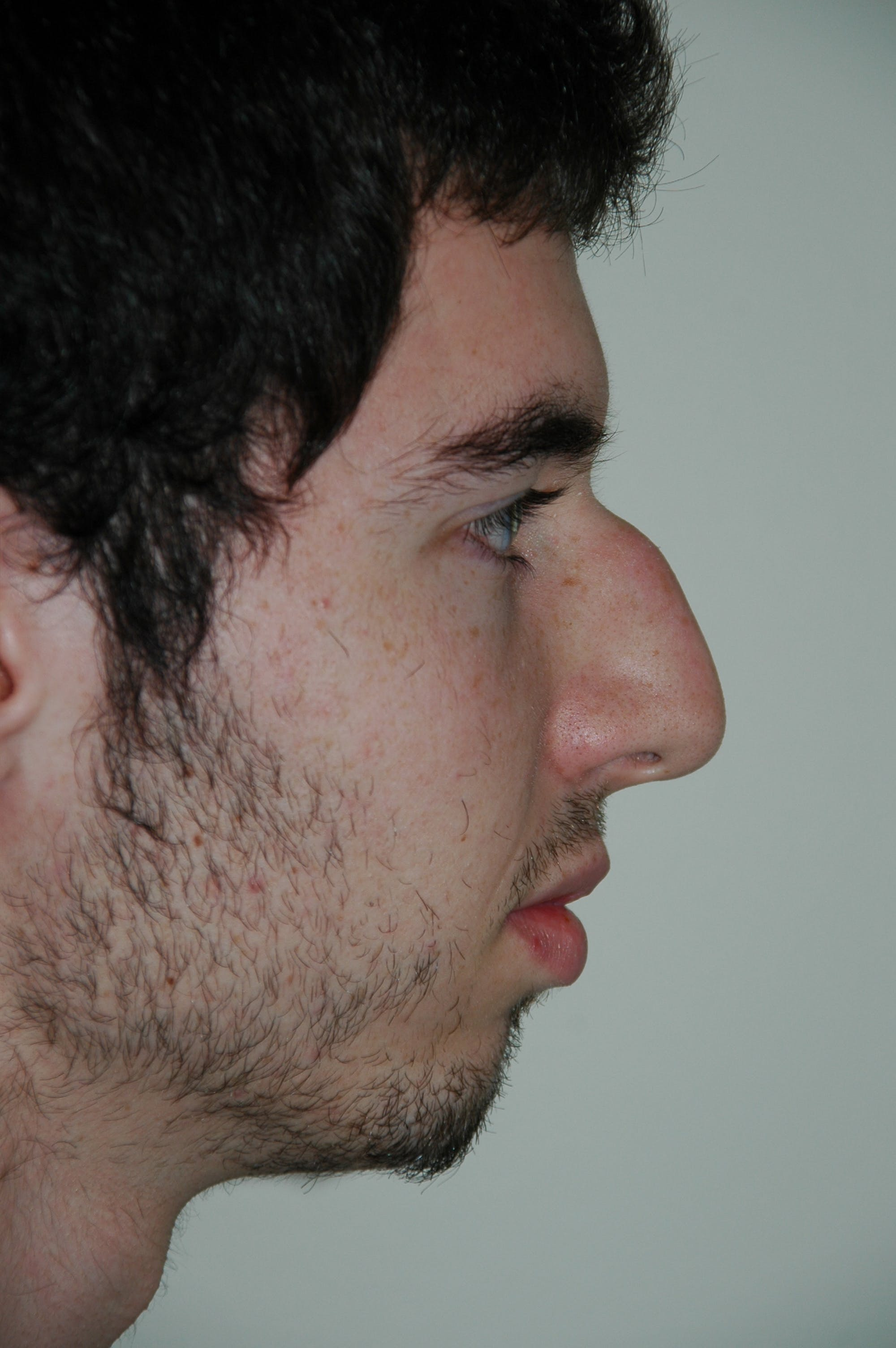 Chin Implant Gallery - Patient 53599849 - Image 1