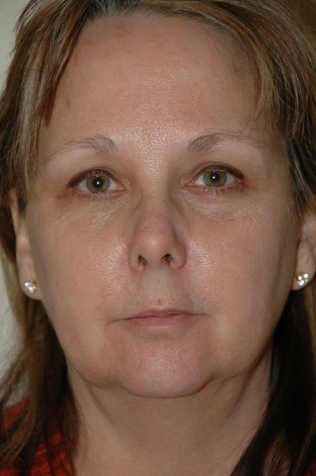 Facelift Gallery - Patient 53599863 - Image 1