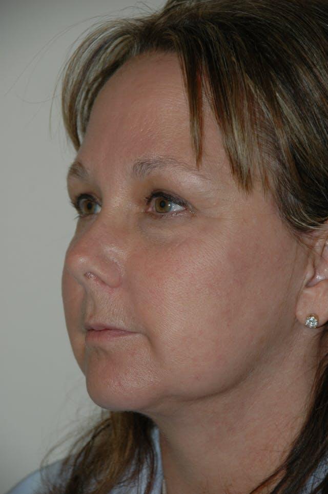 Facelift Gallery - Patient 53599863 - Image 4