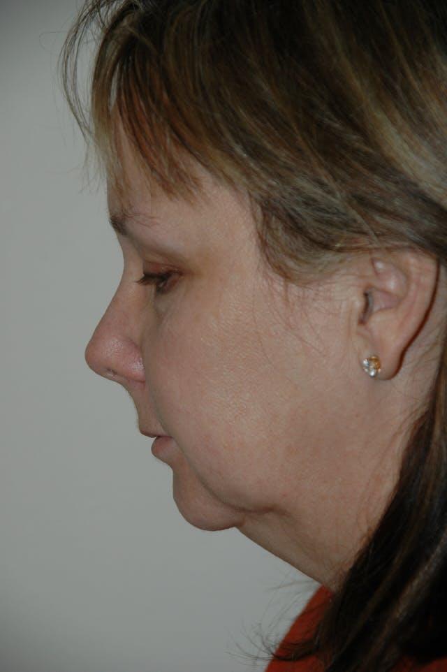 Facelift Gallery - Patient 53599863 - Image 5